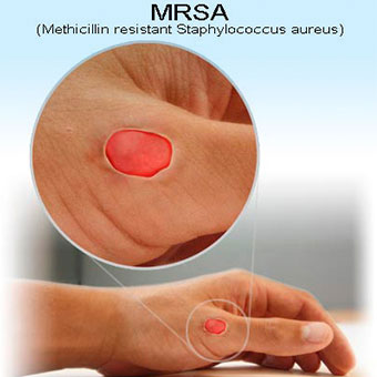 mrsa treatment Articles and studies showing how natural protocols provide help for illnesses from artery blockages and high cholesterol to cancer and mrsa.